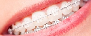 Clear-Braces-Page